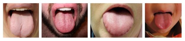 tonguebrigade
